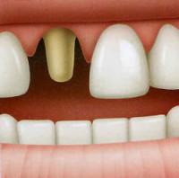 Se prepara el diente para colocar una corona.
