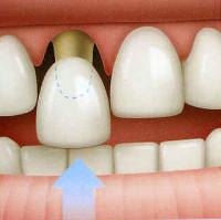 Se coloca una corona provisional sobre el diente preparado.